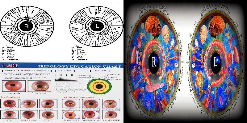 iridology color chart
