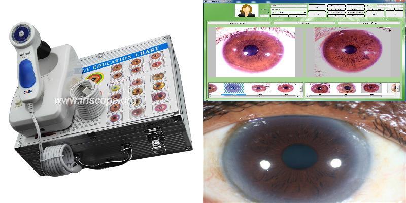 iridologia iriscopio