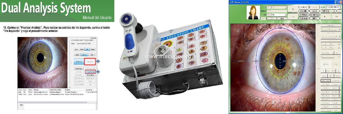 iridology camera software