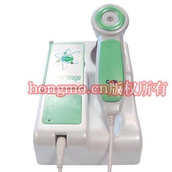 (CADI&DOLMA Upgrade Iriscope for PC)Computer DM9888U irides camera 2
