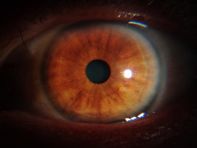 Cancer Studies -iridology case 1