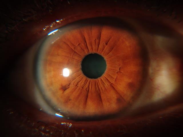 Cancer Studies -iridology case 2