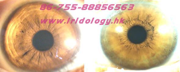 Irilology iris and Acid Physique