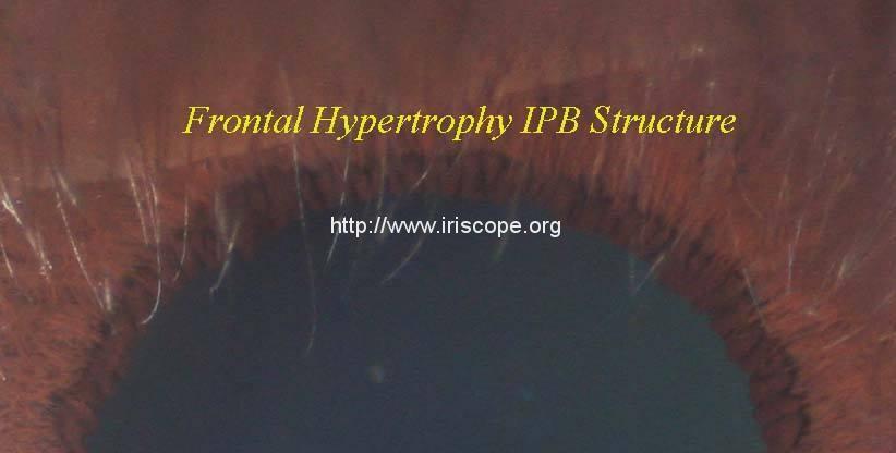 The Frontal Neuroendocrine IPB Tissues