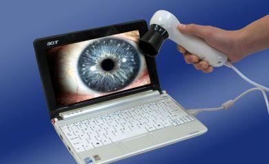 The role of iridology camera and iriscope on modern iridology analysis