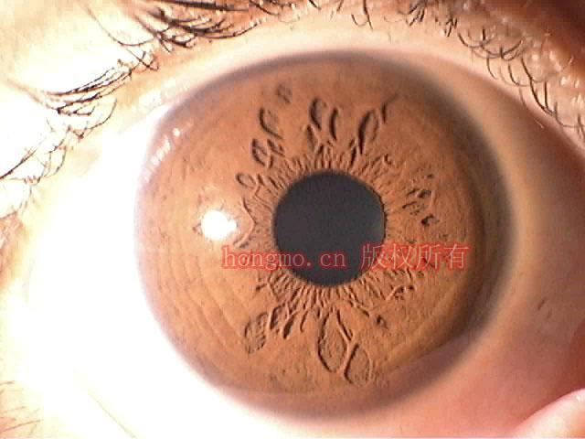 iridologic camera iriscope DM9988 for pc japan CCD IC 4