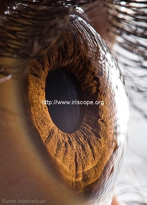 iridology images 10