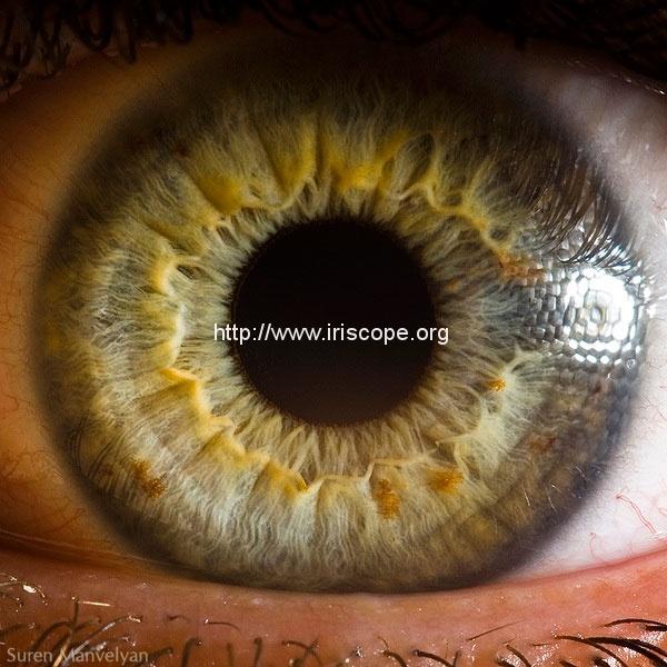 iridology images 6