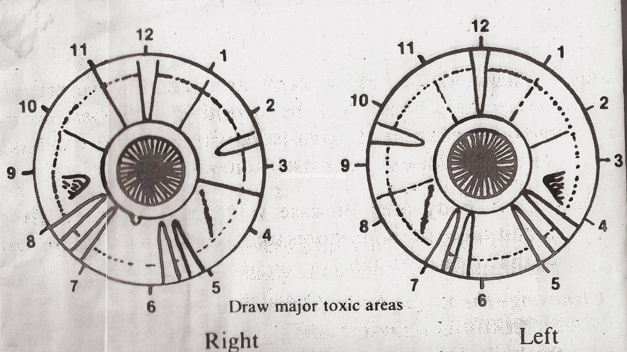 old iridologic chart