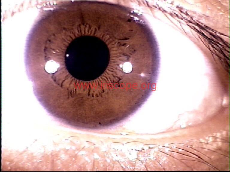 iridology images (10)