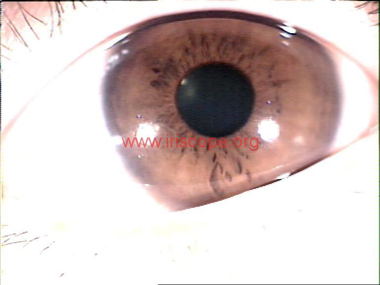 iridology images (100)