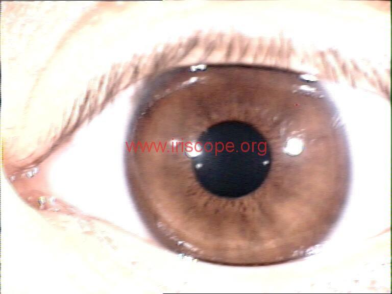 iridology images (101)