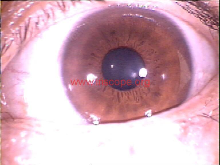 iridology images (102)