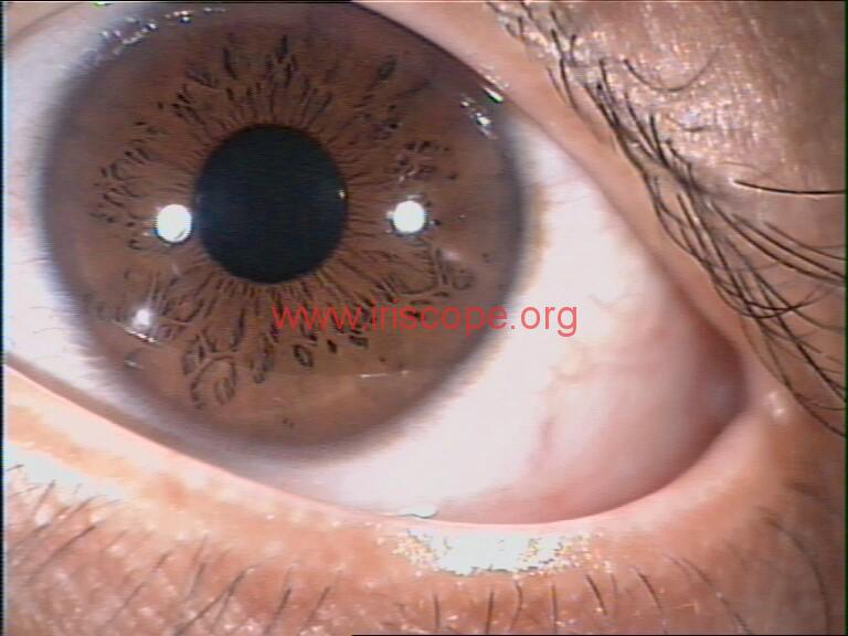 iridology images (103)
