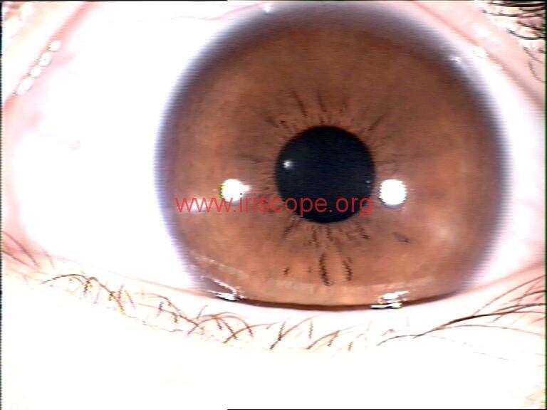 iridology images (105)