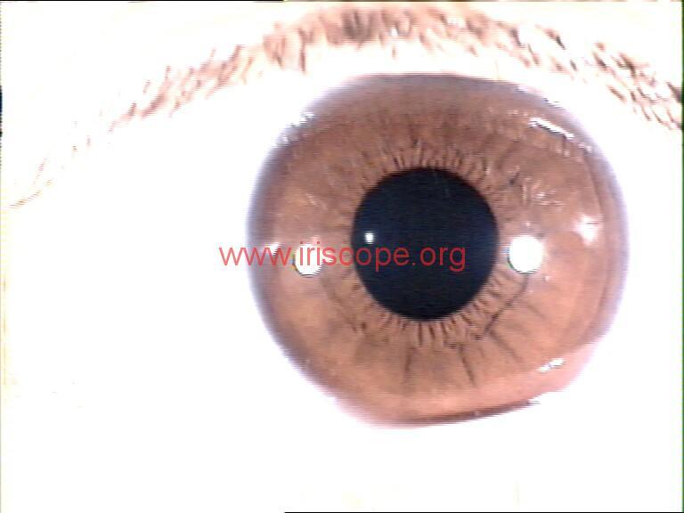 iridology images (106)