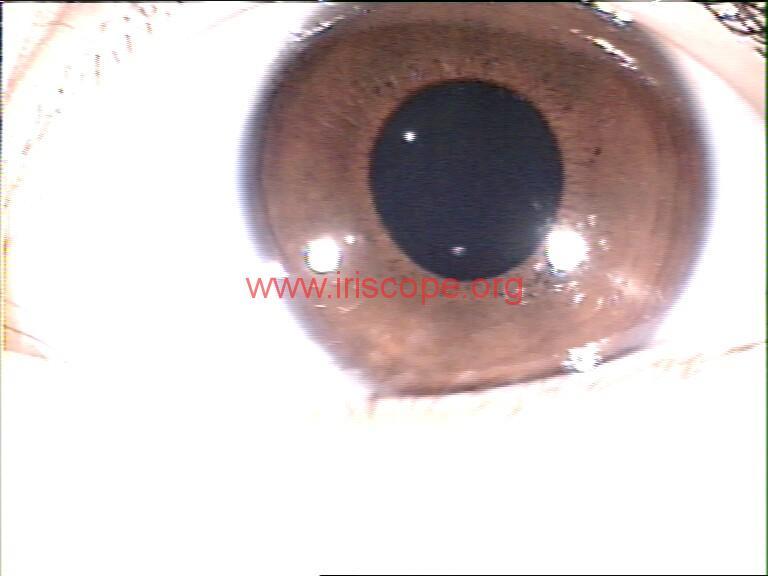 iridology images (107)