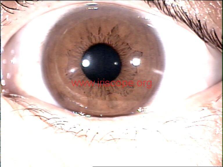 iridology images (108)