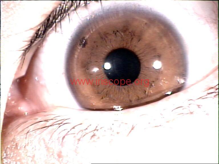 iridology images (109)