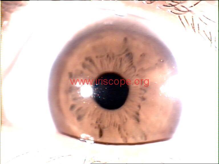 iridology images (110)