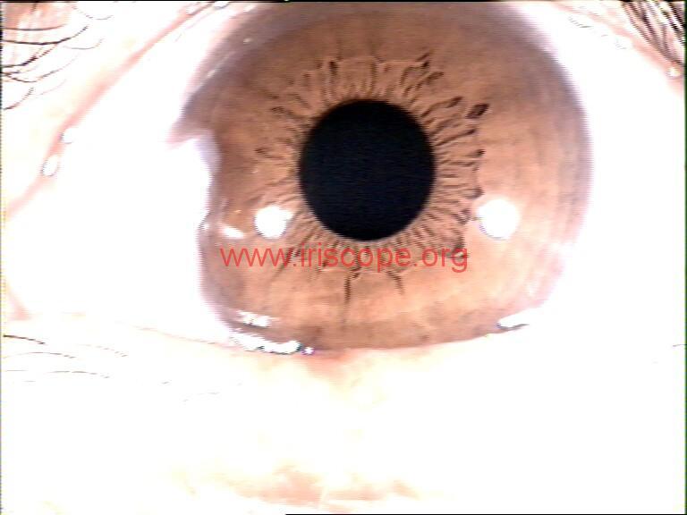 iridology images (111)