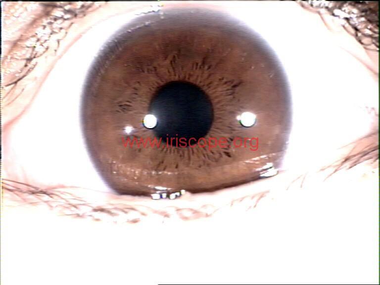 iridology images (112)