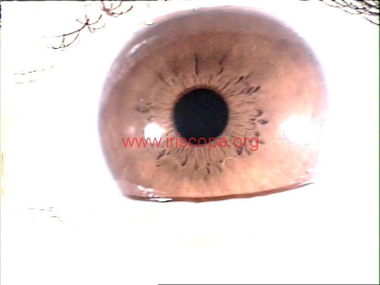 iridology images (114)