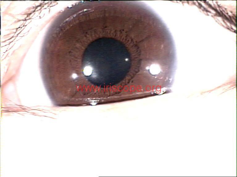 iridology images (115)