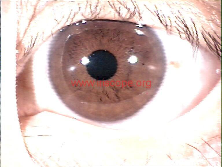iridology images (116)