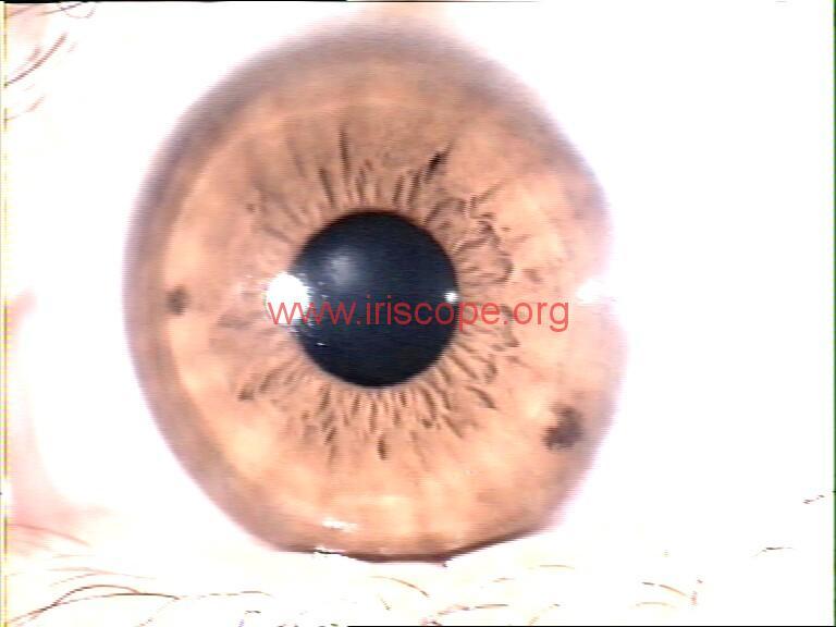 iridology images (117)