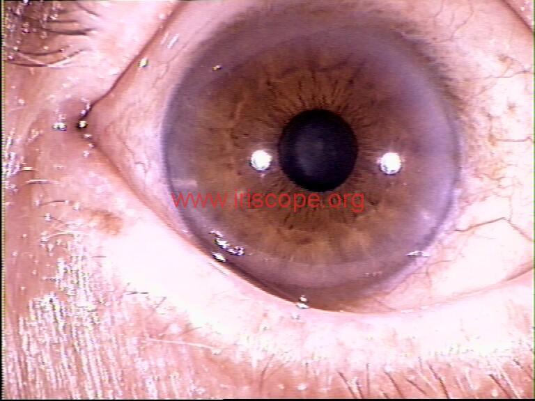 iridology images (118)