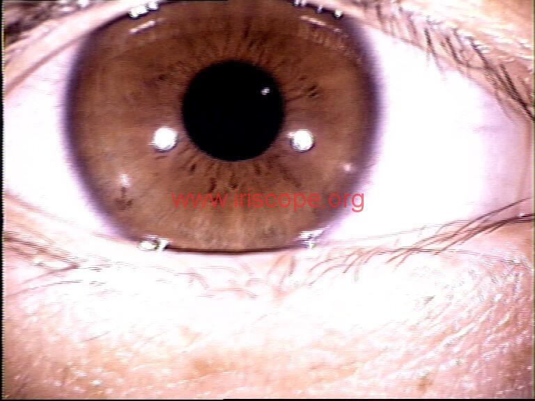 iridology images (12)