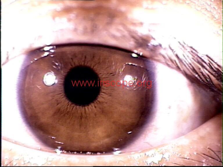 iridology images (15)