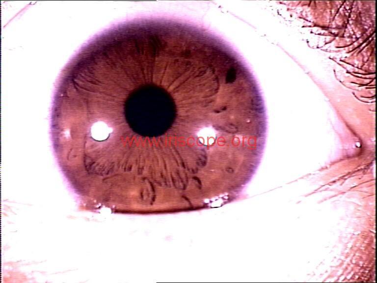 iridology images (16)