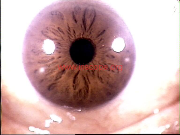 iridology images (17)
