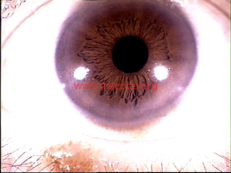 iridology images (18)