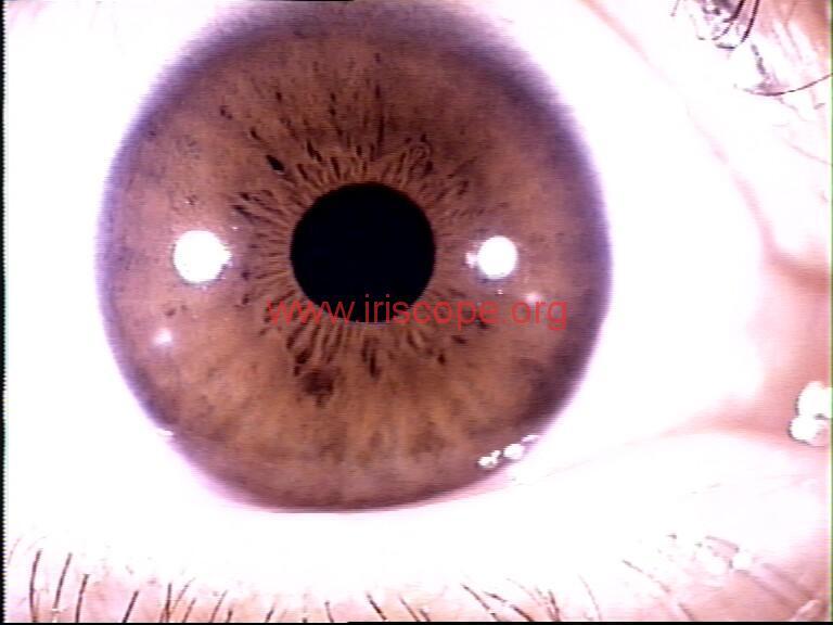 iridology images (19)