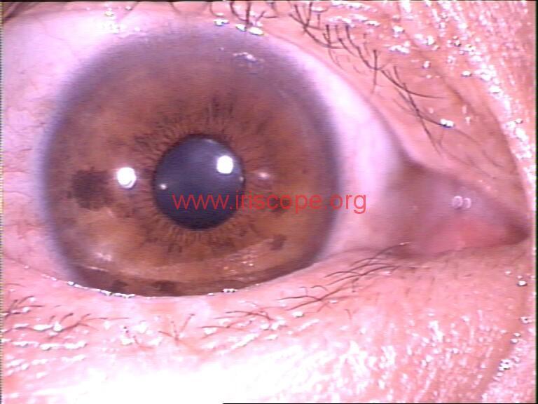 iridology images (2)