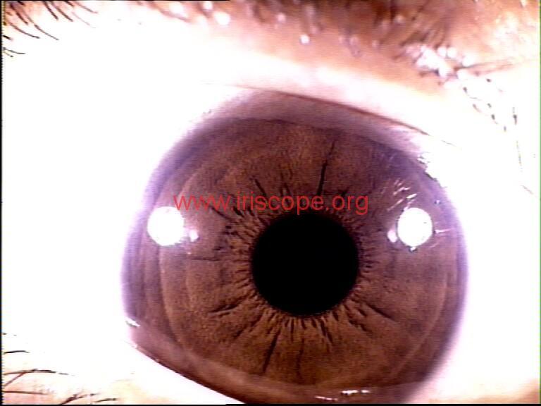 iridology images (20)