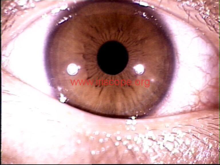 iridology images (21)