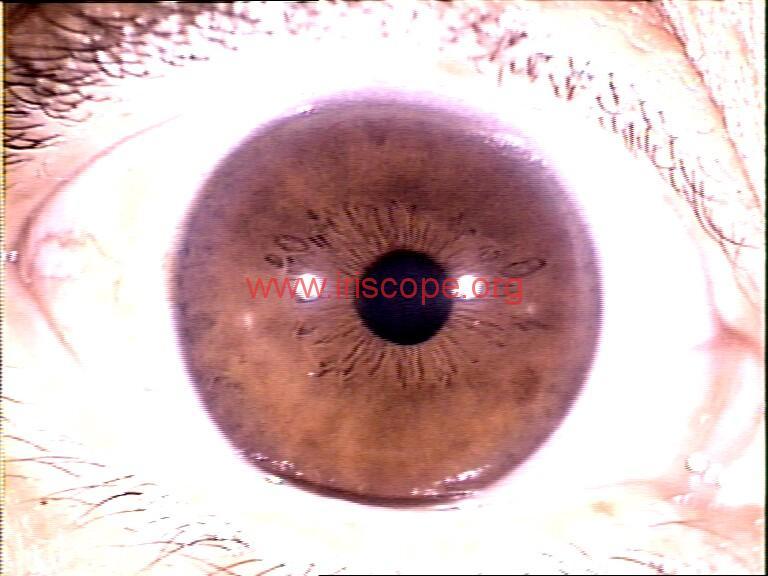 iridology images (22)