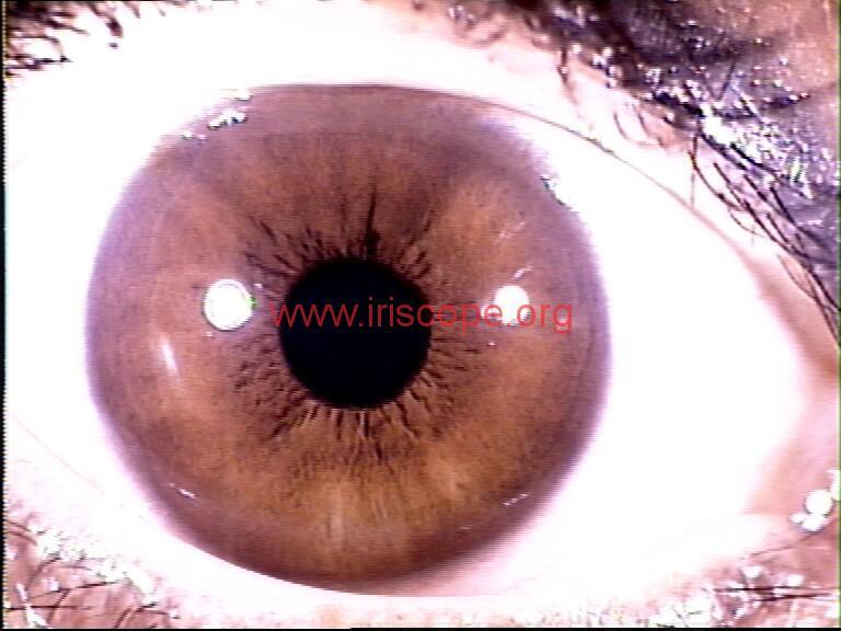 iridology images (23)