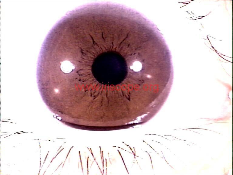 iridology images (24)