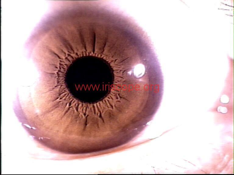 iridology images (25)