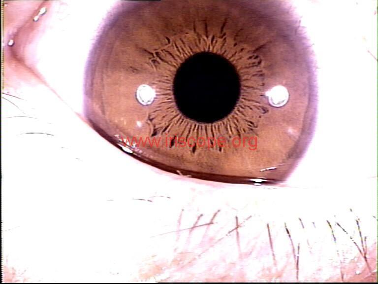 iridology images (26)