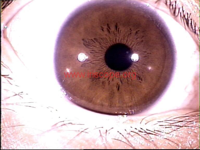 iridology images (27)