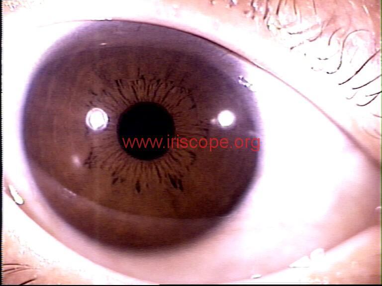 iridology images (28)