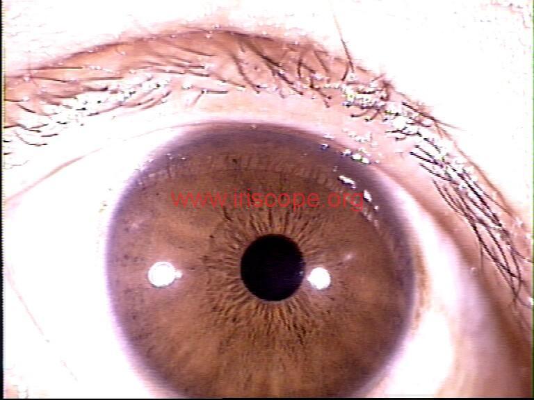 iridology images (29)
