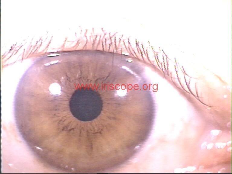 iridology images (3)