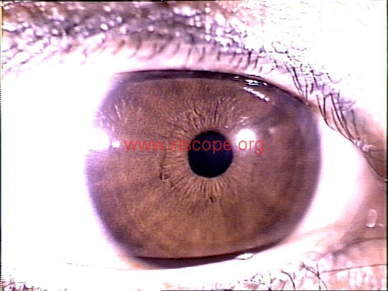 iridology images (30)